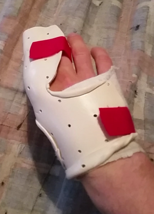 Hand splint dorsal view